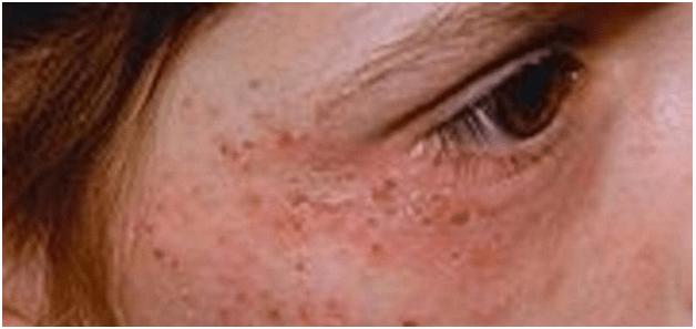 Сыпь на коже: кожная, белая, подкожные высыпания