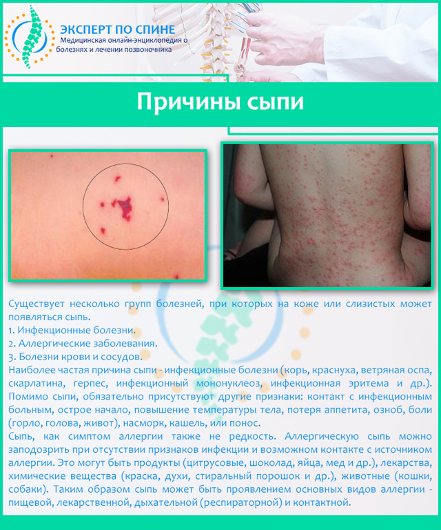 Сыпь на спине у взрослого: чешется, высыпания, причины