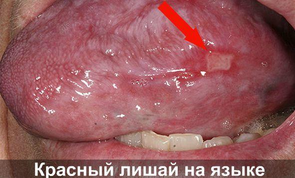Мазь для десен от воспаления: Дента, Солкосерил