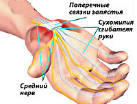Синдром карпального канала: туннельный, что это такое
