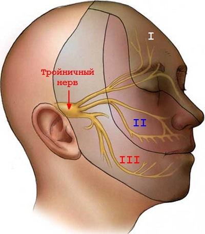 Нейропатия тройничного нерва: идиопатическая, лечение