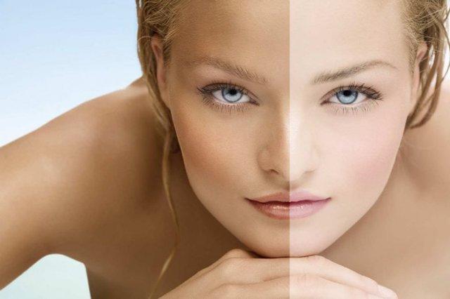 Пигментные пятна на коже: причины, отбеливание, средства