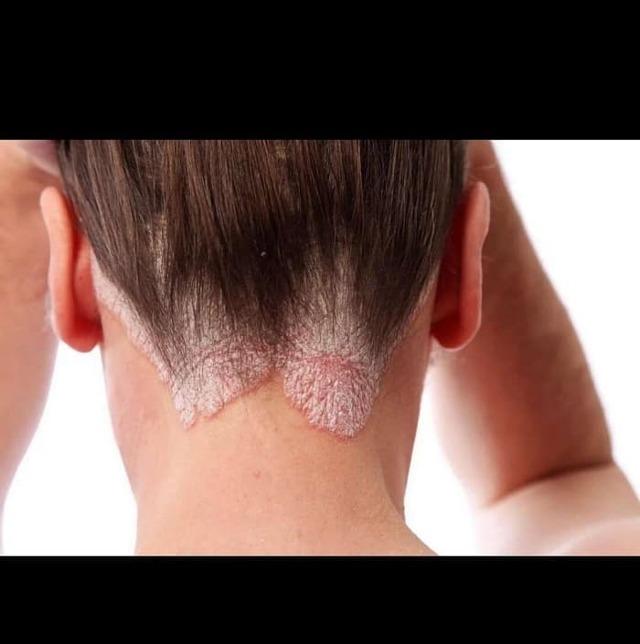 Красные шелушащиеся пятна на голове