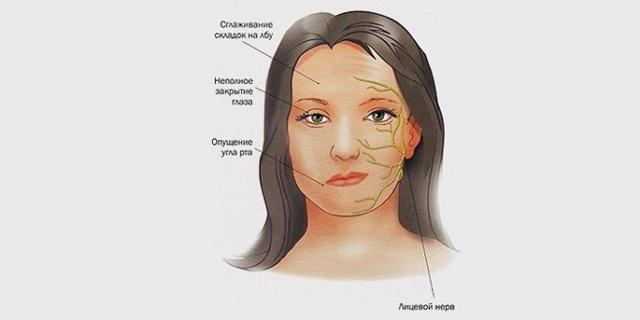 Невралгия тройничного нерва: симптомы, лечение