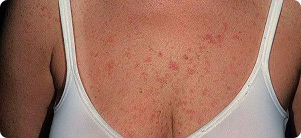 Красное пятно на груди: появилось на грудине у женщины