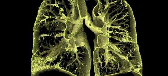 Фиброзирующий альвеолит: идиопатический, лечение легких