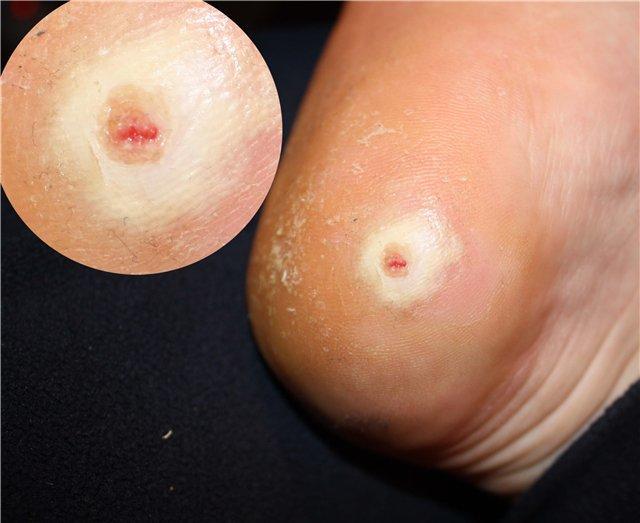 Удаление сухих мозолей со стержнем: на пальцах ног, крем, мазь