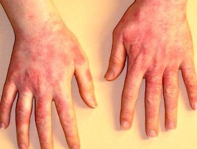 Контактный дерматит: симптомы и лечение, на руках