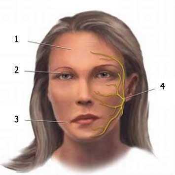 Неврит лицевого нерва: симптомы и лечение, воспаление