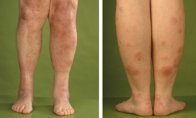 Узловатая эритема на ногах: лечение, узловая, нижних конечностей