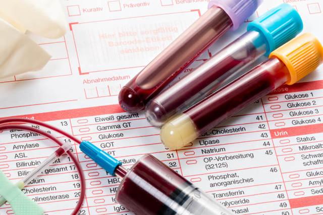 Норма АЛТ и АСТ в крови: у мужчин, по возрасту, таблица