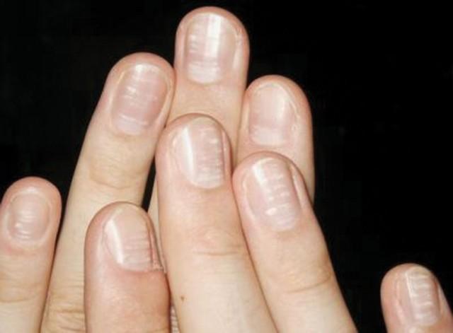 Слоятся ногти на руках: причины и лечение, почему