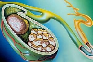 Застой желчи в желчном пузыре: симптомы и лечение, после удаления