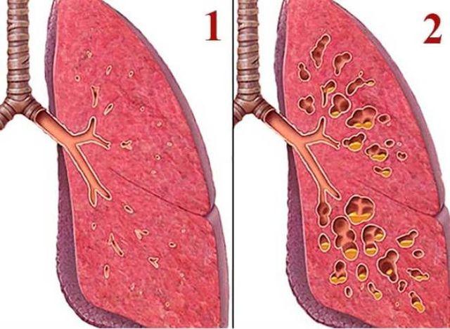 Пневмофиброз легких: что это такое и как лечить, диффузный