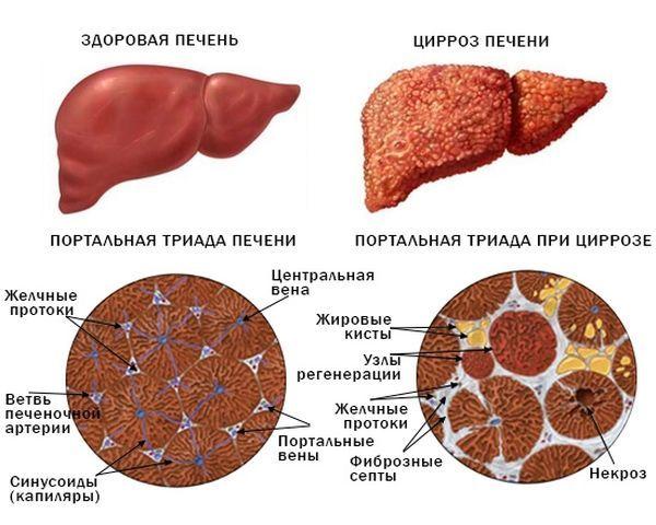 Портальная гипертензия при циррозе печени: лечение, прогноз
