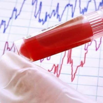 Повышен билирубин в крови: причины и лечение, прямой, непрямой