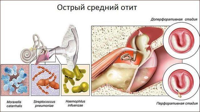 Шум в левом ухе: причины и лечение, что это может быть, как избавиться