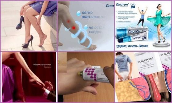 Сосудистые звездочки на ногах: причины и лечение, крем, удаление