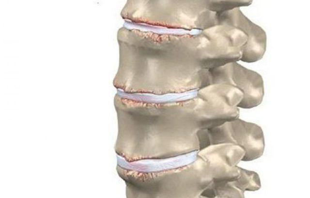 Спондилоартроз шейного отдела позвоночника: унковертебральный