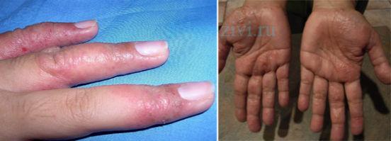 Сыпь на руках в виде прыщиков: пальцах рук, в виде прыщиков