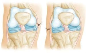 Разрыв связок коленного сустава: сколько заживает, лечение