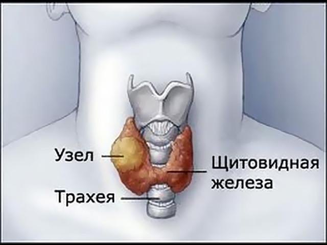 Хронический тиреоидит: аутоиммунный с узлообразованием