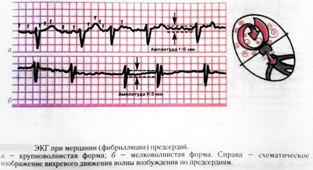 Мерцательная аритмия сердца: причины и симптомы, лечение, прогноз