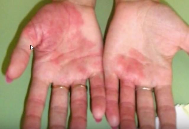Дисгидротическая экзема кистей рук: лечение, на пальцах