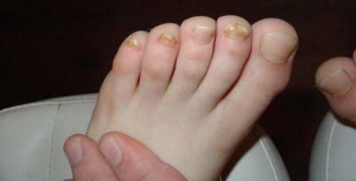 Микоз ногтей: лечение, причины, симптомы, ногтевой пластины
