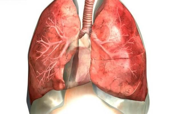Правосторонняя пневмония: нижнедолевая, верхнедолевая