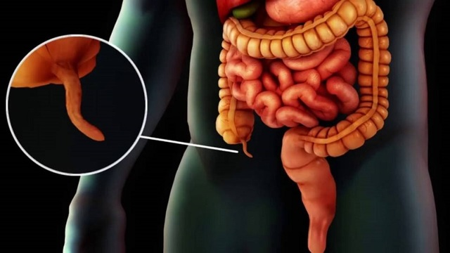Хронический аппендицит: симптомы у женщин, мужчин, лечение
