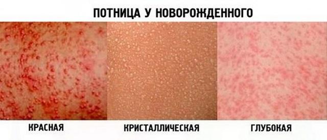 Потница или аллергия: как отличить, у грудничков