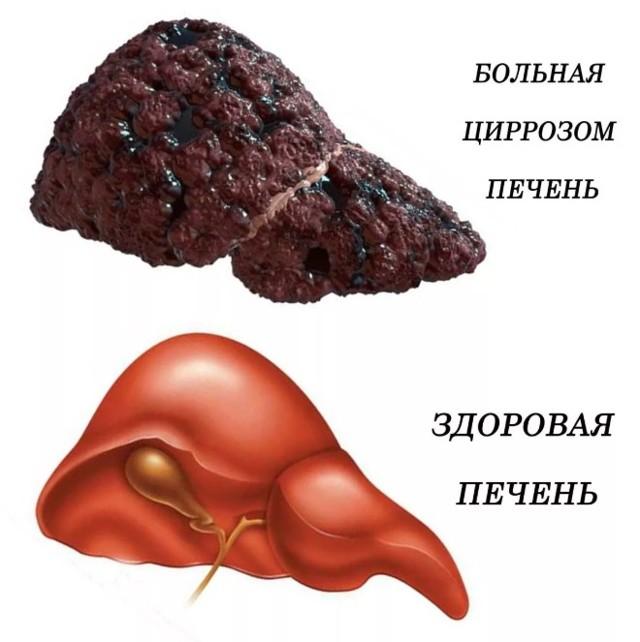 Цирроз печени: симптомы у мужчин, сколько живут, при гепатите С