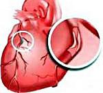 Ишемическая болезнь сердца: симптомы и лечение, ИБС