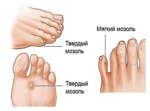 Мозоль между пальцами ног: на ногах, как избавиться, что делать