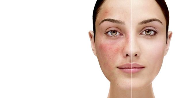 Розацеа на лице: лечение, причины, как лечить, причины