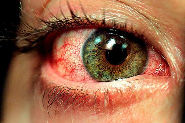 Усталость глаз: симптомы, от компьютера, лечение, как снять