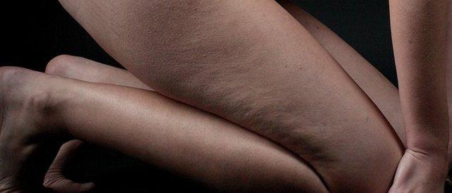 Как убрать темные пятна между ног: в домашних условиях