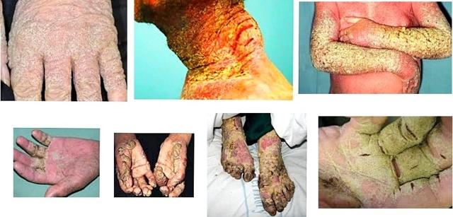 Норвежская чесотка: симптомы, лечение, корковая