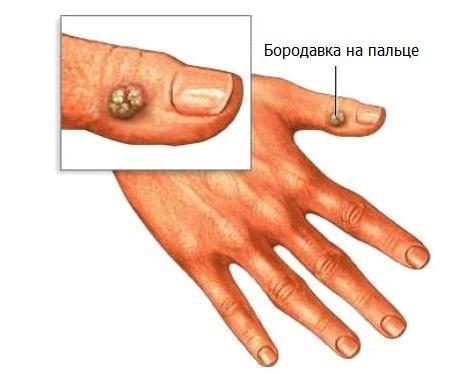 Как избавиться от бородавки на пальце руки в домашних условиях