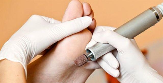 Сухая мозоль на пальце ноги со стержнем: лечение, как лечить