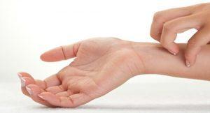 Экзема на руках: причины и лечение, как вылечить навсегда