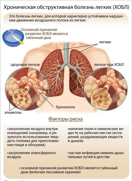 Обструкция легких: что это такое, обструктивная болезнь, заболевание