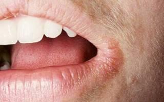 Трещины в уголках губ: причины и лечение, чем лечить, почему