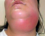 Флегмона шеи: что это такое, симптомы, лечение