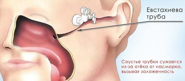 Закладывает ухо: причина и лечение, почему, заложенность