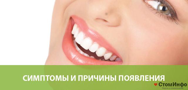 Пародонтит: симптомы и лечение в домашних условиях, причины