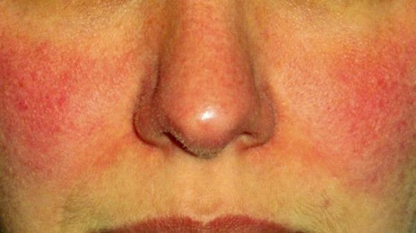 Шелушится кожа на лице: причины, покраснения упражнения, лечение