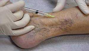 Томбофлебит глубоких вен нижних конечностей: симптомы, лечение
