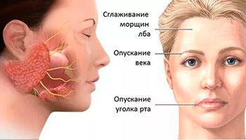 Нейропатия лицевого нерва: симптомы и лечение, лицевая